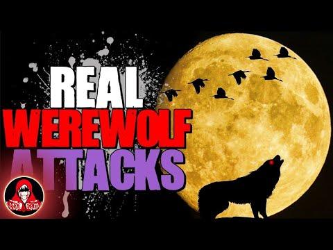 4 REAL Werewolf Attacks