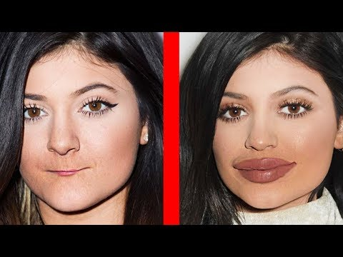 BEFORE & AFTER: Plastic Surgery (CELEBRITIES)