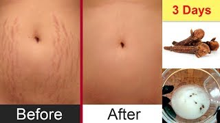 Remove Stretch Marks in 3 Days Get Rid with Home Remedies Naturally Urdu Hindi