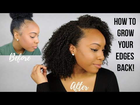 Why I Had Thin/Bald Edges & How I Grew My Edges Back! | Tips to Grow Fuller Edges FAST!!!