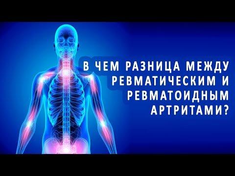 В чем разница между ревматическим и ревматоидным полиартритами?