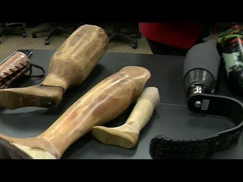 Advanced bionic technology changes lives