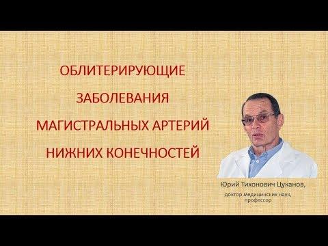 Облитерирующий атеросклероз артерий нижних конечностей, лекция для врачей