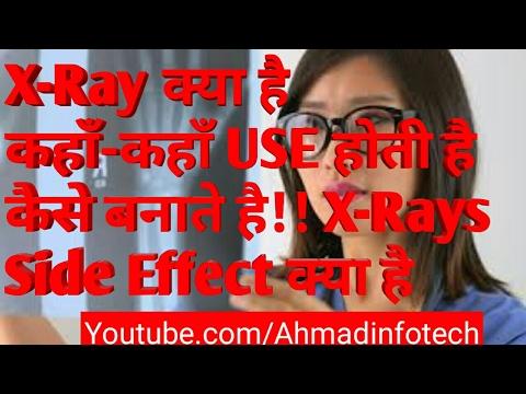 X-Ray क्या है ||कहाँ-कहाँ USE होती है||कैसे बनाते है|| X-Rays!!Side Effect क्या है || Hindi ||2018
