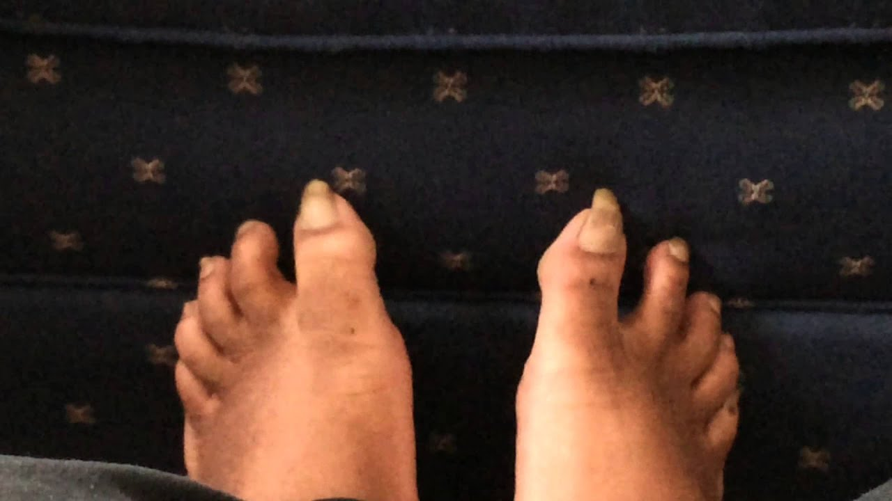 ugly feet fetish