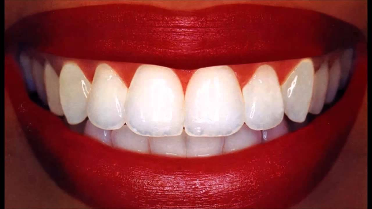 Natural Teeth Whitening Reviews