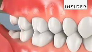 Why Do We Remove Wisdom Teeth?