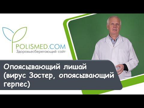 Опоясывающий лишай (вирус Зостер, опоясывающий герпес)