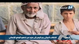 الصحة العالمية: اليمن على حافة المجاعة جراء تدهور الوضع الإنساني