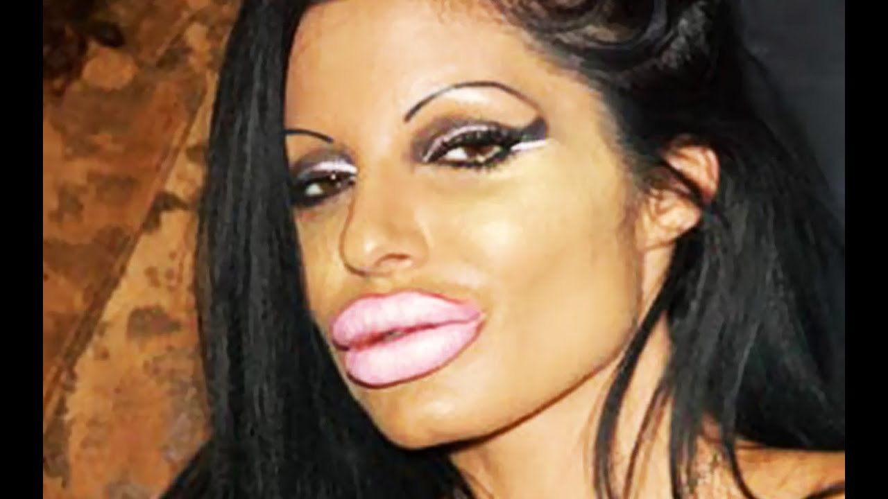 Botox Injections Gone Wrong