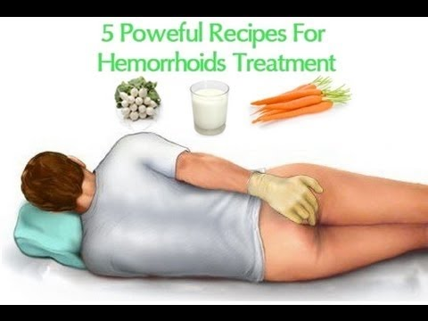 How to Get Rid of Hemorrhoids | Cure Hemorrhoids Naturally - YouTube