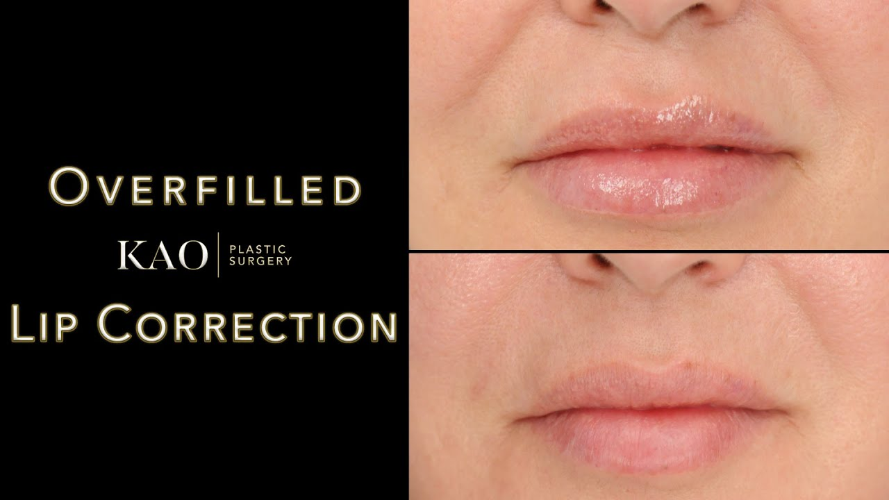 The Overfilled Lip Epidemic! Contoured Correction - Shaping Beautiful Lips - KAO Plastic Surgery