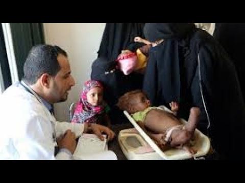 المجاعة تعصف باليمن والأمم المتحدة تحذر من وقوع أسوأ كارثة بالعالم  - نشر قبل 9 ساعة