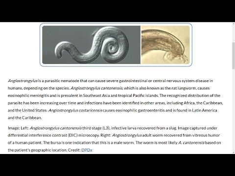 Parasites in the News:  Rat Lungworm (Way to Ruin a Honeymoon)