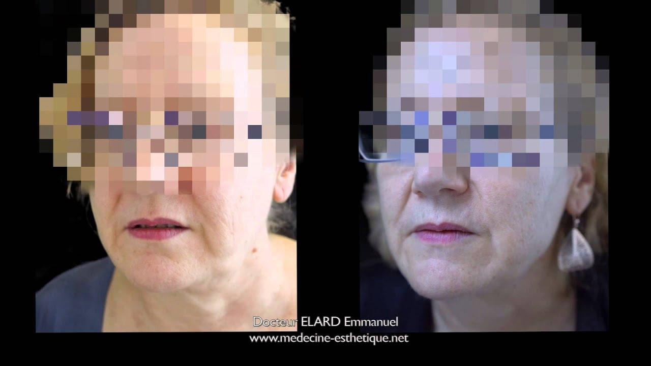 lifting par ultrasons du cou et de l 39 ovale du visage youtube. Black Bedroom Furniture Sets. Home Design Ideas