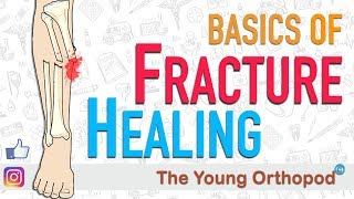 Fracture Healing | ANIMATION | BASICS | The Young Orthopod