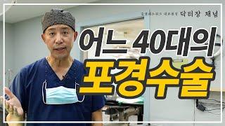(수술후) 어느 40대 남성이 포경수술을 받은 이유가 …