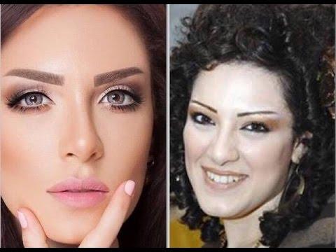 شاهد ردة فعل هبة الدري بعد انتشار صورها قبل وبعد التجميل Youtube