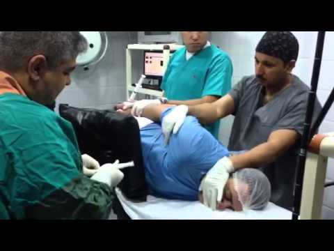 تركيب بالون المعدة بواسطة د . تامر الشافعي(1)