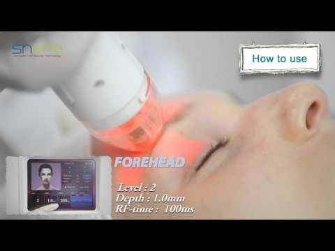 VIVACE (RF fractional needle) - YouTube
