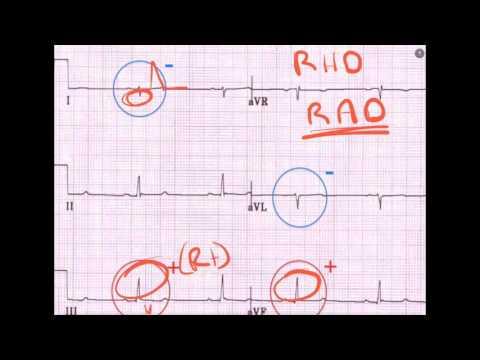 ECG in PE - A Primer