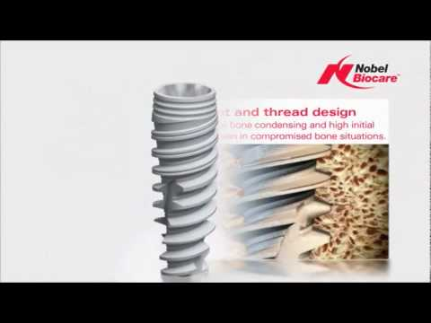 NobelActive   features and benefits   NobelActive   Implant