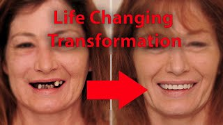 Missing Teeth Replacement Procedure \u0026 Cost | Apollo White Dental
