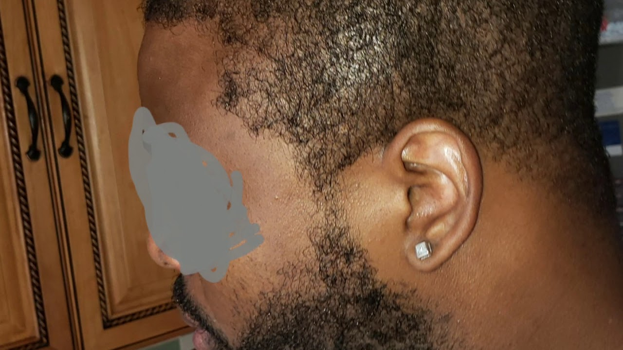 My African American hair transplant FUE month 1 to month 8