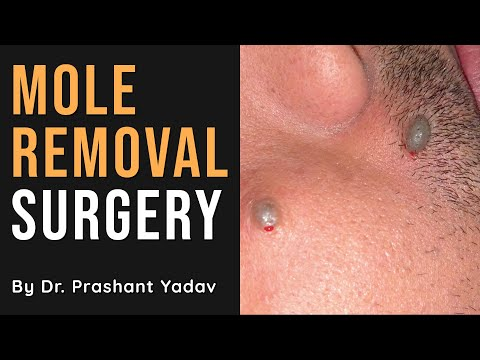 Remove Your Face Mole Permanently | Mole Removal Laser