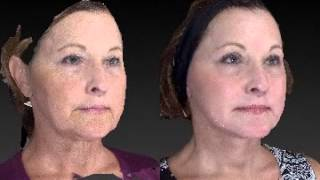 Facial Rejuvenation 3D Before and After - 1