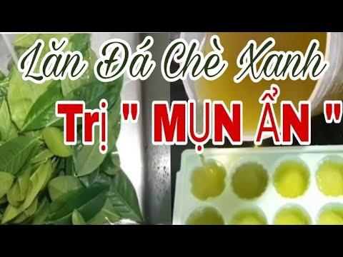 """LĂN ĐÁ CHÈ XANH TRỊ """" MỤN ẨN """"  II LÀM ĐẸP CÙNG NHAU"""