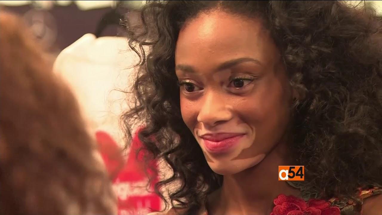 hpv causes vitiligo)