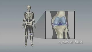 Osteoarthritis of the knee: Choosing the right pain medicine