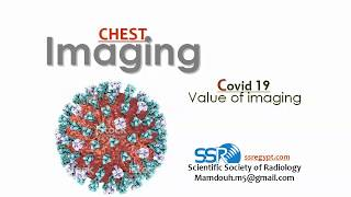 COVID 19 (Value of Imaging) - Prof. Dr. Mamdouh Mahfouz