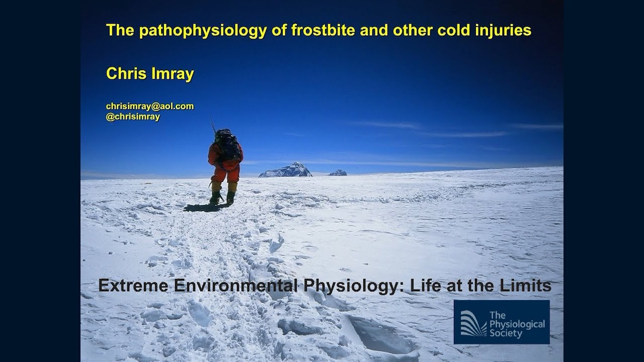 The pathophysiology of frostbite [GRAPHIC CONTENT]