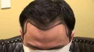 Frontal Bald Hair Loss Thinning Transplant Restoration  Dr. Diep Bay Area CA www.mhtaclinic.com