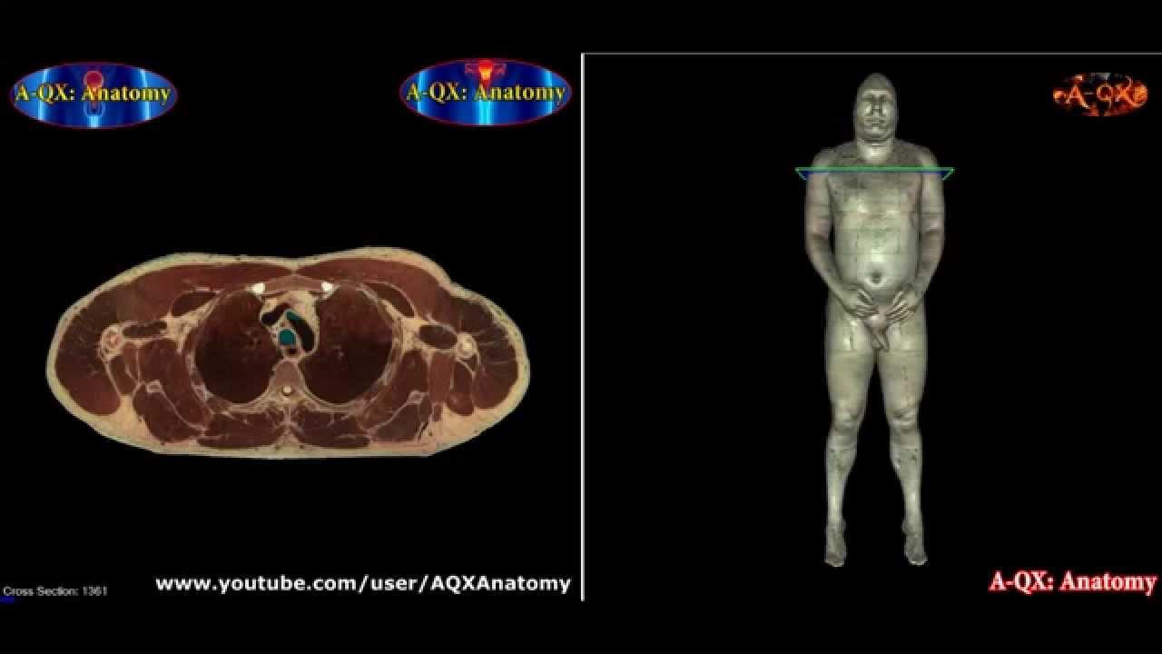 расположение лимфоузлов на теле человека фото схема