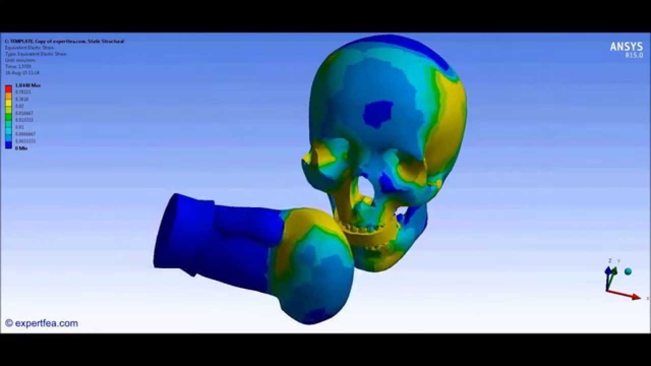 application ansys for stress analysis pressure vessel engineering essay Hydrostatic pressure application in ansys  lifting analysis of horizontal pressure vessel using four lifting lugs in ansys, part-2  hoop & radial stress correlation of pressure vessel with.