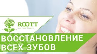 Имплантация всех зубов. 😷 Метод имплантации всех зубов при малом количестве костной ткани.(, 2018-03-06T12:36:16.000Z)