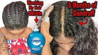 My 6-8 Mo. Wash Routine &+ Washing My Hair Using Dawn Dish Soap! WHY I DO IT!?