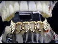 Diamond-Cut Vampire Fang Bottom Grillz