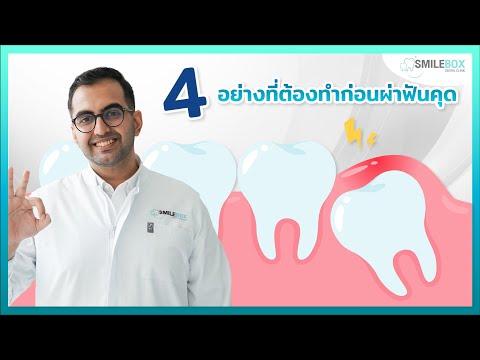 4 อย่างที่ต้องทำก่อนผ่าฟันคุด‼️ I หมอฟัน SmileBox