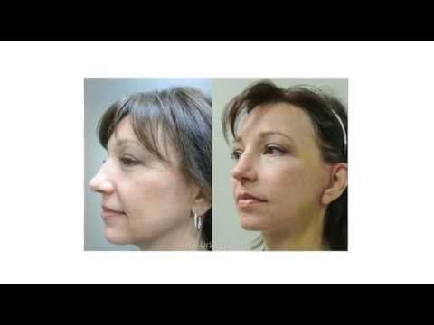 Facelift vs  Necklift: Which is right for you?