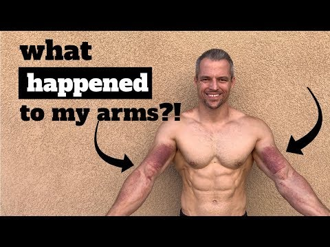 What Happened To My Arms?! Graston Technique To Get My Range Of Motion Back!