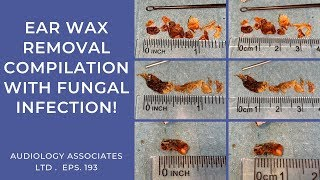 EAR WAX REMOVAL COMPILATION WITH FUNGAL INFECTION - EP193