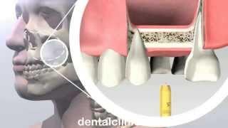 Стоматология лечение зубов имплантация в Москве Санкт-Петербурге протезирование европейское качество(, 2014-03-25T19:46:57.000Z)