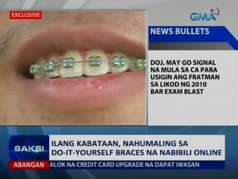 Saksi ilang kabataan nahumaling sa do it yourself braces na saksi ilang kabataan nahumaling sa do it yourself braces na nabibili online youtube solutioingenieria Image collections