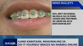 Alex gonzaga is wearing braces again clip saksi ilang kabataan nahumaling sa do it yourself braces na nabibili online solutioingenieria