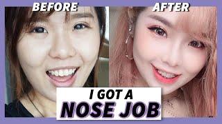 鼻整形术 MY PLASTIC SURGERY EXPERIENCE: NOSE JOB, RHINOPLASTY  $1600? MALAYSIA? 马来西亚鼻整形术!