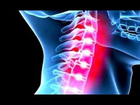 Классификация остеохондроза коленного сустава